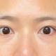我是属于十几岁的时候泪沟眼袋就明显,大概是遗传性的,那时候不懂,就是以为是眼袋,后来大了才知道有泪沟这一...