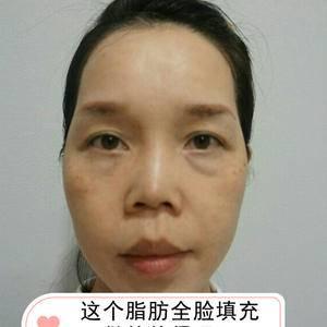 自体脂肪填充如何改善初老脸?