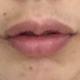 第二天,虽然唇形不是自己想象中的样子,不过还是比以前好看