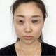 体验项目:埋线提升变美诉求:面部已经出现松弛下垂现象,我们面部的筋膜层到了30岁以后的支撑力会下降,加...