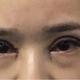 体验项目:切开双眼皮+内眼角变美诉求:典型的肿眼泡单眼皮,肿起来的眼皮捏出来很厚,而且贴了几年双眼皮贴...