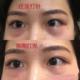 体验项目:熊猫针变美诉求:我本身皮肤比较薄,黑眼圈有点青。遗传性黑眼圈,从小就顶着黑黑的眼眶。加上爱...