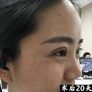 双眼皮修复--让爱美不再成为悔恨!