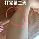体验项目:瘦腿针变美诉求:最近觉得自己的腿,越来越不好看了。好像胖了许多,所以决定打个瘦腿针试试。机...