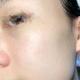 体验项目:Aopt光子嫩肤变美诉求:最近加班比较多,熬夜算是家常便饭了。所以皮肤也肉眼可见得差了不少。毛...