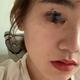 体验项目:蜂巢皮秒变美诉求:为了让大家看真实效果,我摆出的是无P无滤镜的照片哈(都是用苹果手机拍的)。...
